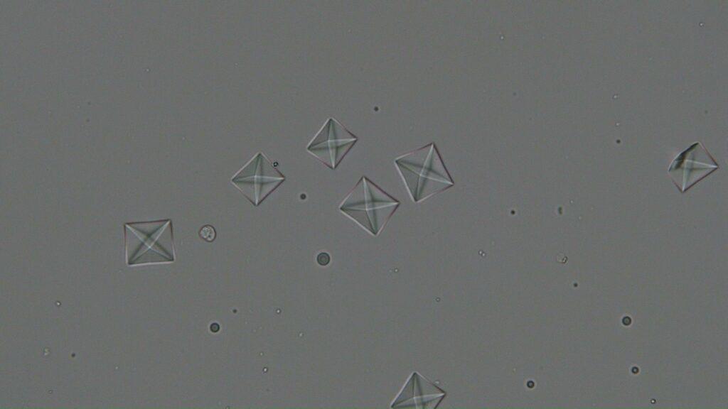 尿石 シュウ酸カルシウム
